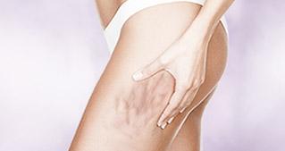 他院脂肪吸引の失敗修正